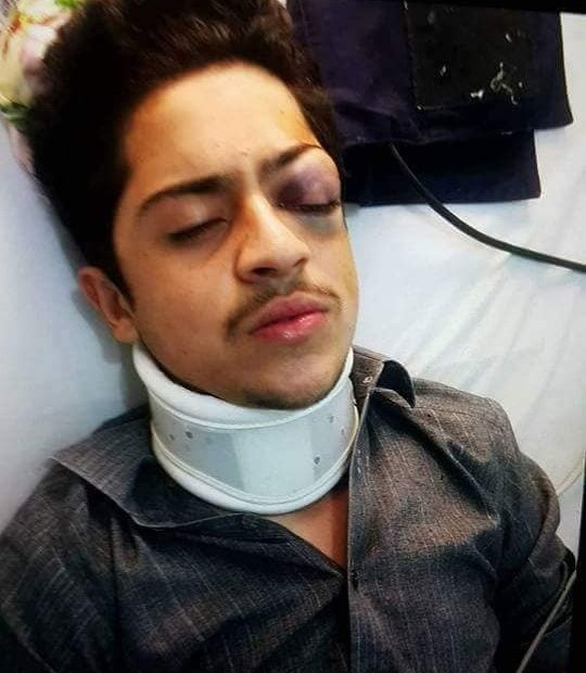 Help sought for treatment of injured student.